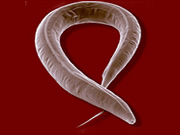 worm-study-sheds-light-on-human-aging-inherited-diseases