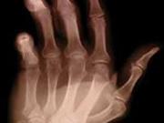 genes-that-increase-rheumatoid-arthritis-risk-identified