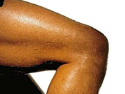 many-common-ways-of-treating-knee-osteoarthritis-have-no-scientific-support
