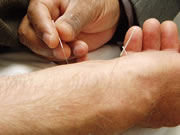 acupuncture-reduces-pain-need-for-strong-painkillers-after-surgery