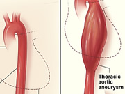 a-new-key-to-detecting-deadly-aortic-aneurysms